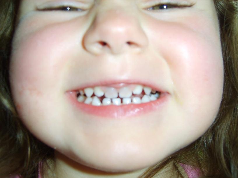 The Muminator Grey Teeth After Hitting Mouth