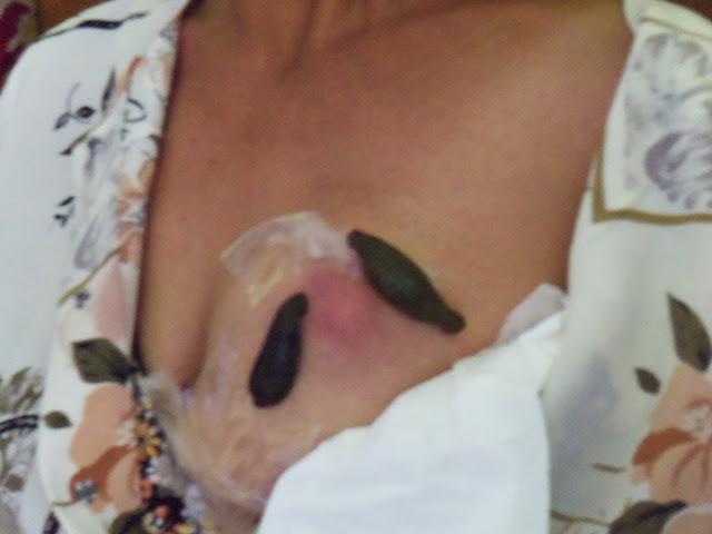 Mengobati Tumor Dengan Terapi Lintah di rajalintah.com