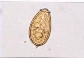 telur Clonorchis sinensis