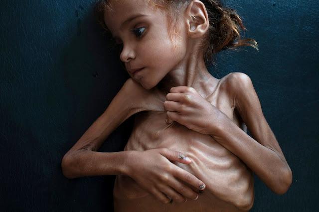 siedmioletnia skrajnie  wychudzona Amal fot. Tyler Hicks