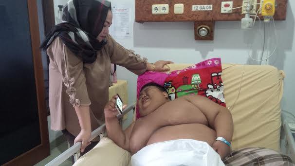 Bobot Tubuh 119 Kilogram, Anak 11 Tahun Dibawa Ke RS