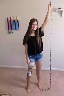 Gabi Shull is a 15 year old amputee ballerina who survived cancer