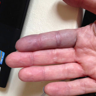 Achenbach syndrome Pictures, Symptoms, Causes, Treatmet