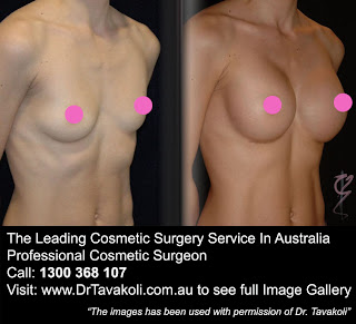 augmentation breast cc size jpg 422x640