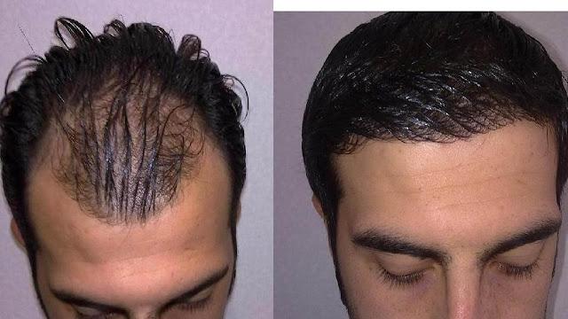 کاشت موی سر و هزینه کاشت مو