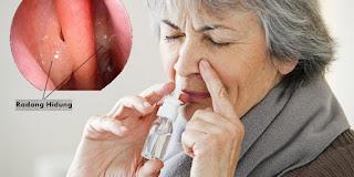 obat radang hidung herbal