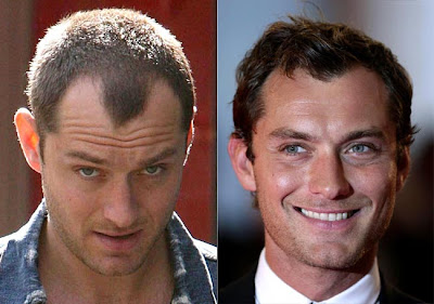 Swell History Tattoos Mens Hairstyles For Receding Hairlines Short Hairstyles Gunalazisus