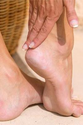 Remedios Caseros Para La Psoriasis En Los Pies