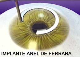 9f3d6803e0fa1 ... o médico se certifica que o anel está bem posicionado e centrado e  coloca uma lente de contato terapêutica