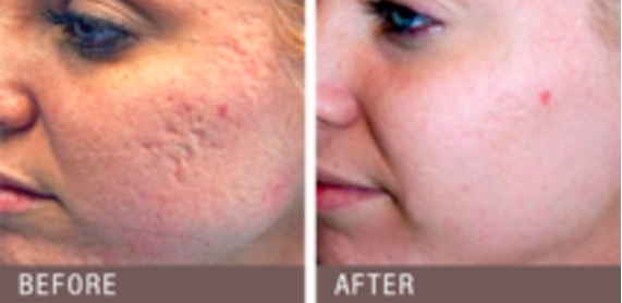 Plasma RX Skin Resurfing offered at Lumiere Dermatology
