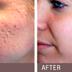 Plasma RX Skin Resurfing offered at Lumiere Dermatology