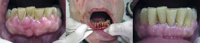 """<Imgsrc =""""Cirugía-periodontal-remodelación-hueso-y-encía.jpg"""" width = """"893"""" height """"196"""" border = """"0"""" alt = """"Tratamiento quirúrgico de encía y hueso"""">"""