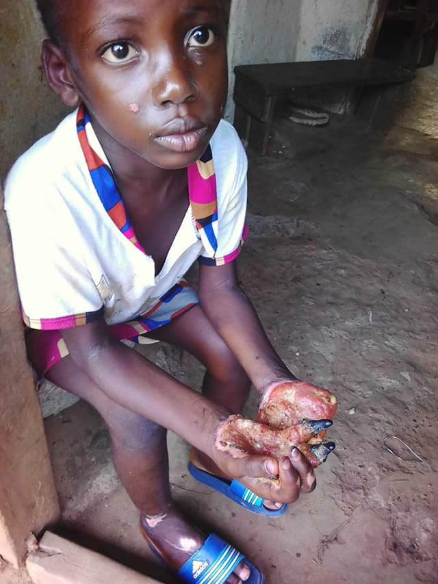 Photo Woman Burns Little Girls Hand With Hot Oil, Locks -6565