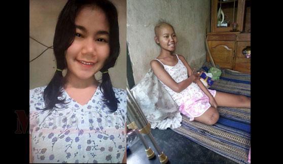Kondisi Eli sebelum dan sesudah menderita kanker