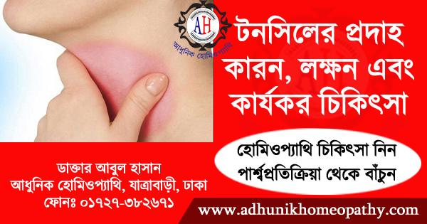 টনসিলের প্রদাহ (Tonsillitis) - কারণ, লক্ষণ ও চিকিত্সা