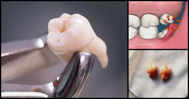 Effective Home Remedies For Wisdom Tooth Pain