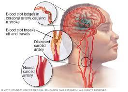 Cara Mengobati Stroke Secara Efektif dan Ampuh, apa gejala awal stroke yang ringan?, Bagaimana Cara Untuk Mengatasi Penyakit Stroke Ringan?