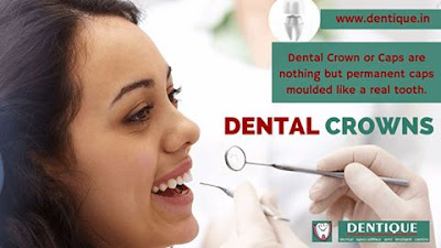 Dental Crown Treatment in Kerala
