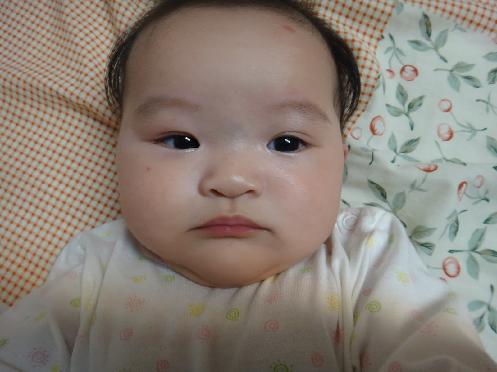 Babyhome 小BABY宸瑀的成長部落格,紀錄BABY的點點滴滴。: BABY針眼治療篇
