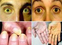 Obat Sakit Kuning Tradisional, Manjur Untuk Anak dan Dewasa