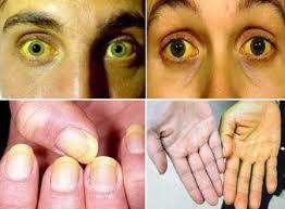 Penyebab Penyakit Kuning & Obat Penyakit Kuning Tradisional Mujarab dan Alami