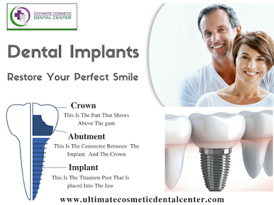 http://www.ultimatecosmeticdentalcenter.com/Dental_Implants.html