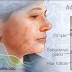 About Adults Acne
