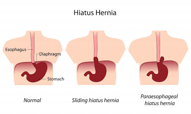 Hiatus Hernia Treatment Chennai