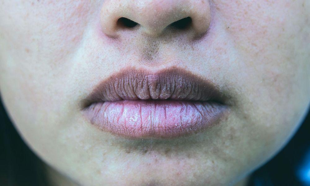 Labios morados