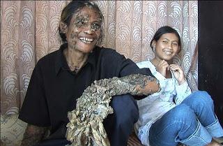 Manusia-Pohon-Indonesia