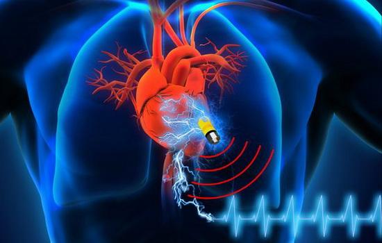 KeSimpulan Implan Pemacu Jantung Tanpa Baterai