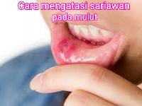 Cara mengatasi sariawan dan menjaga kesehatan mulut