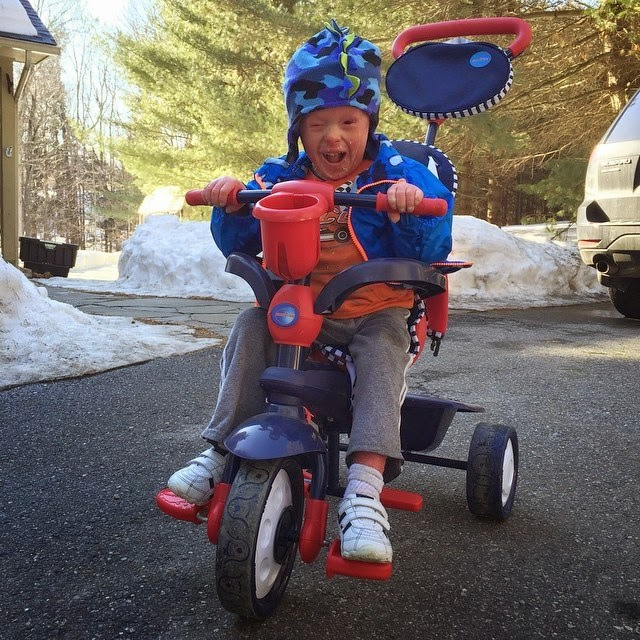 Evan, who has Harlequin Ichthyosis, on a bike