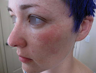 A mild form of lamictal rash on the patient's face picture