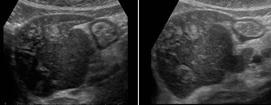 Ultrasound Hepatitis