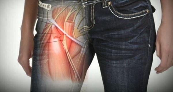 Trendet e modës mund t'shkaktojnë dëmtim t'nervave - xhinset e ngushta probleme serioze shëndetësore
