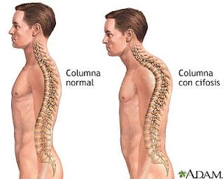 Postura con hipercifosis