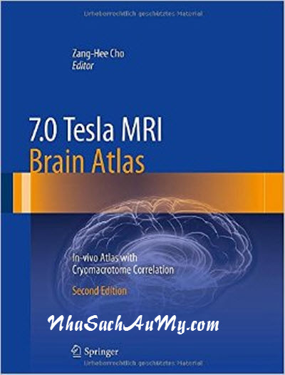 7.0 Tesla MRI Brain Atlas: In-vivo Atlas with Cryomacrotome Correlation