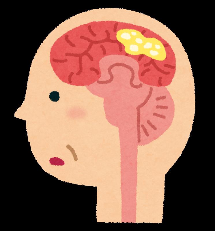 認知症の脳のイラスト(レビー小体型)
