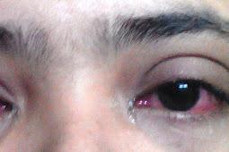Kisah Laki-laki Sakit Mata Yang Diludahi Oleh Rasul
