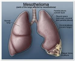 Mesothelioma is a rare form of lung cancer Mesothelioma Article -
