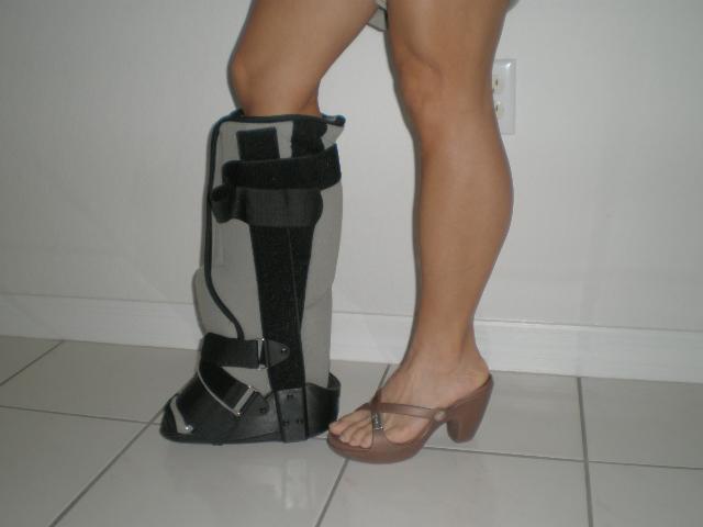 Prigizmo39s Achilles Tendon Injury Recovery No Crutches