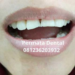 gambar foto gigi patah cuil yang akan diperbaiki dilapisi dengan menggunakan veneer