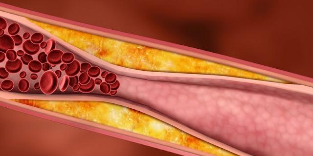 8 pantangan makanan pengidap kolesterol