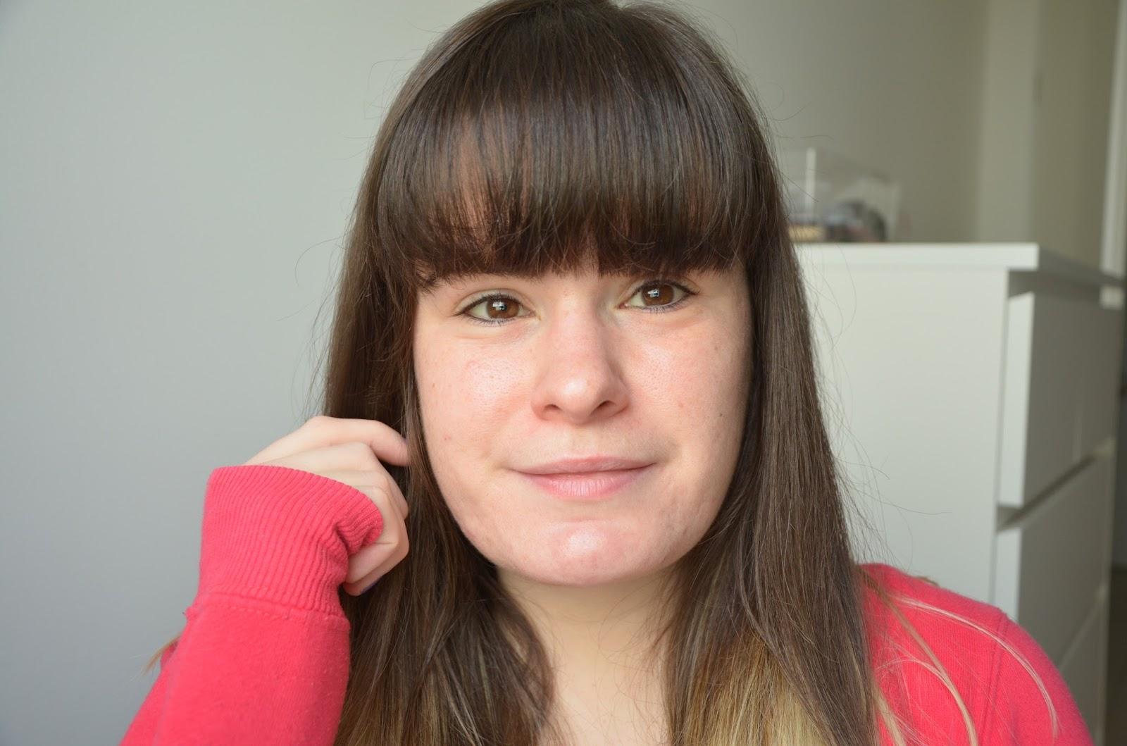 bilan, 1 an de traitement contre l'acné