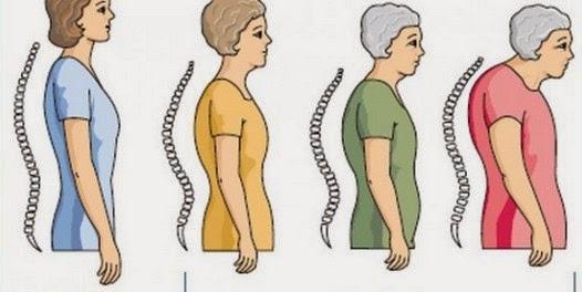 Cara Alami untuk Mencegah Osteoporosis