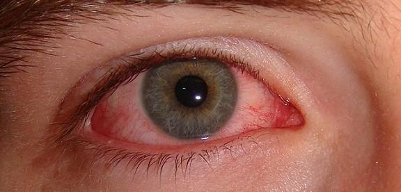 Göz Kanlanması Nasıl Geçer, Göz Kanlanması Nasıl Düzelir?