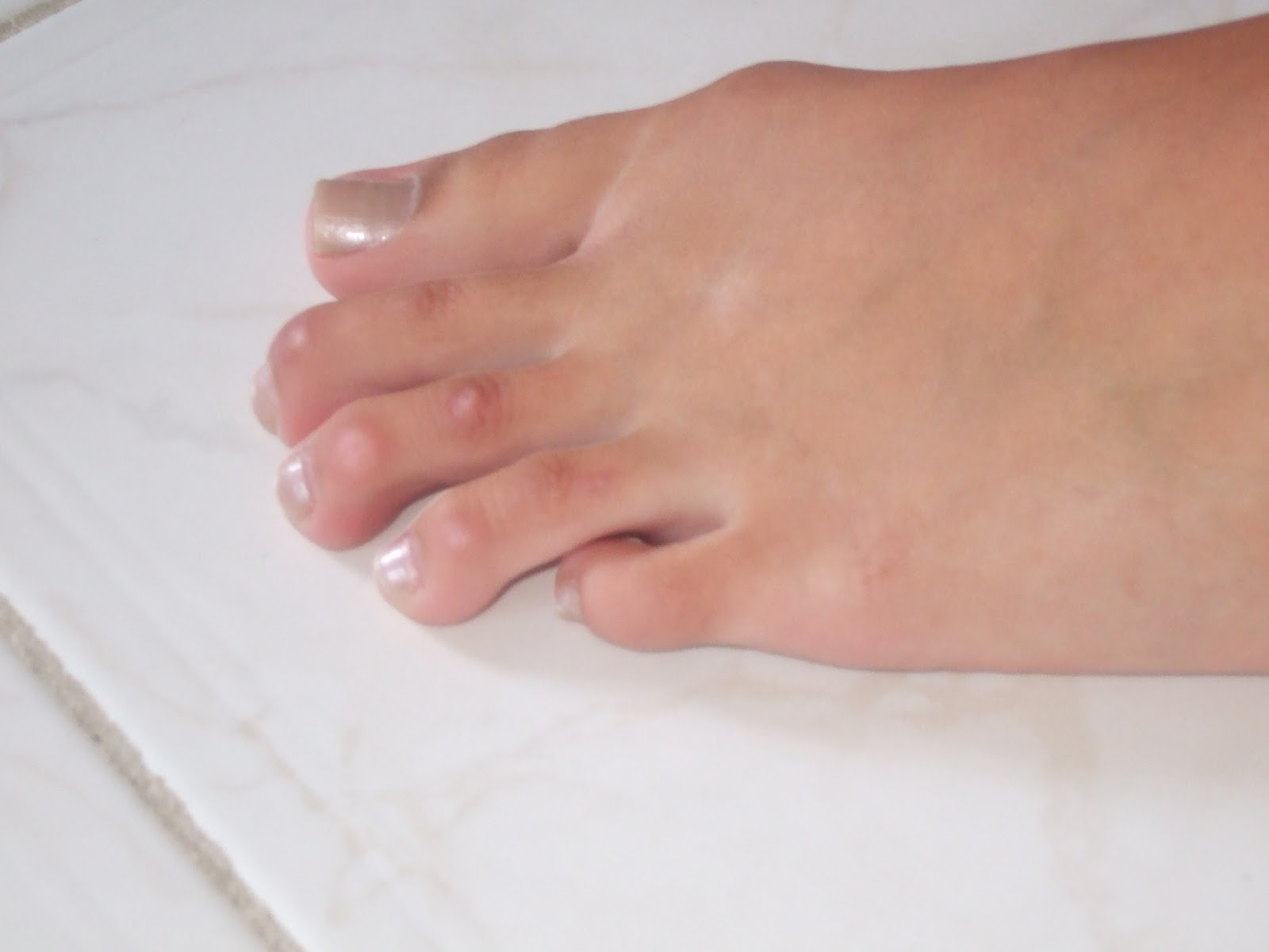 Hammer Toe