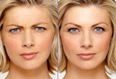 Immagine del prima e del dopo botulino