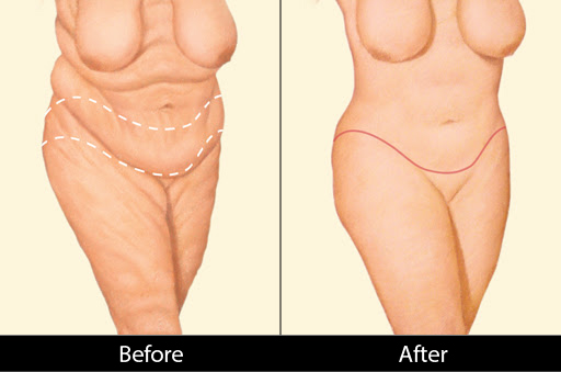 body-lift-before-after